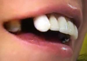 もえのあずき 歯がない